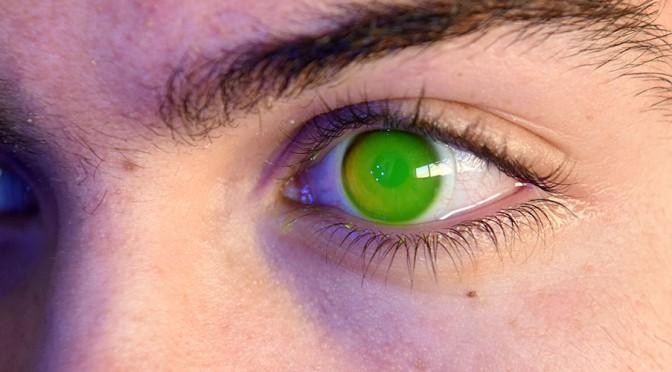 La CUVI de la UMU pone en marcha la terapia visual asistida por ordenador