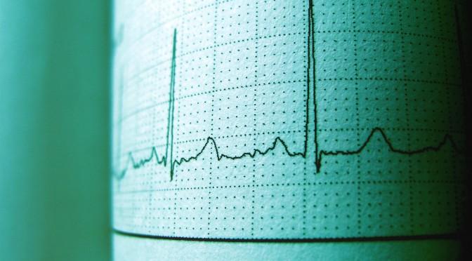 La Universidad de Murcia busca la mejora del tratamiento de pacientes con fibrilación auricular